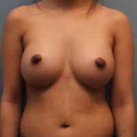 27 year old woman treated with Breast Augmentation after 3390813