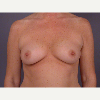45-54 year old woman treated with Breast Augmentation before 3278105
