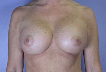 45-54 year old woman treated with Breast Augmentation after 3278105