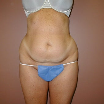 38 year old woman treated with Tummy Tuck before 1971055