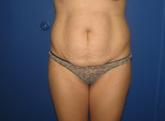 Tummy Tuck before 577133