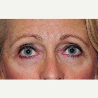 55-64 year old woman treated with Eye Bags Treatment with Lower Eyelid Blepharoplasty and CO2 Laser