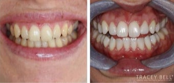 Enlighten Teeth Whitening before 3093759