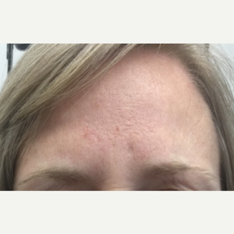 35-44 year old woman treated with Wrinkle Treatment after 3802052