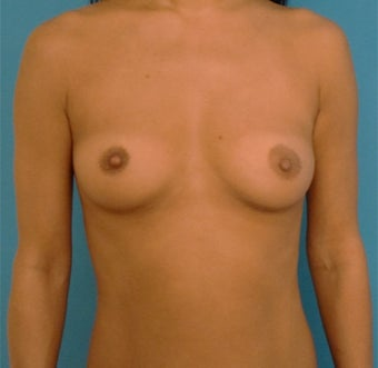 35-44 year old woman treated with Breast Augmentation before 3423644