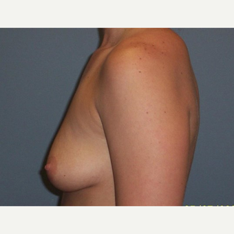 Breast Augmentation before 3560759