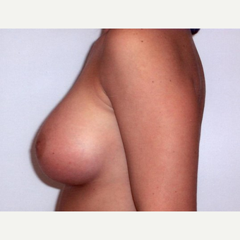 Breast Augmentation after 3560759