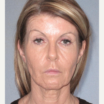45-54 year old woman treated with Facelift before 3364644