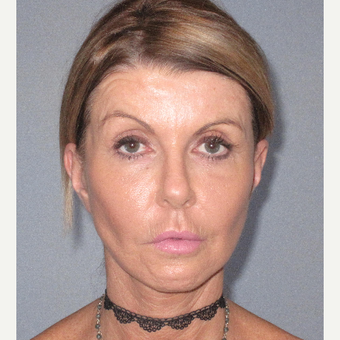45-54 year old woman treated with Facelift after 3364644