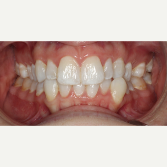 25-34 year old woman treated with Braces before 3188530