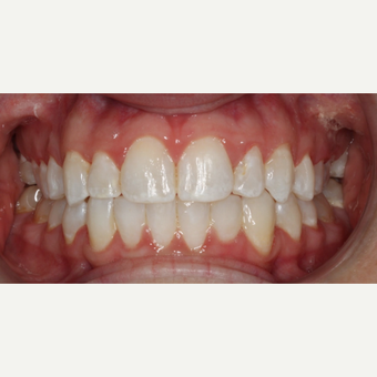 25-34 year old woman treated with Braces after 3188530