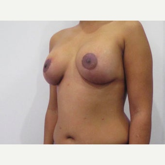 35 year old woman treated with Breast Lift with 275 cc silicone Breast Implants after 2550371