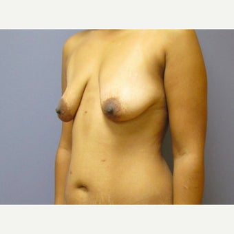 35 year old woman treated with Breast Lift with 275 cc silicone Breast Implants before 2550371