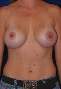 Breast Implants after 1016667