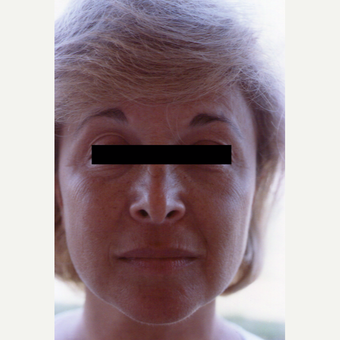 45-54 year old woman treated with Chemical Peel before 3543722