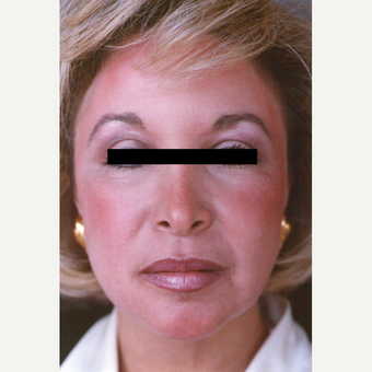 45-54 year old woman treated with Chemical Peel after 3543722