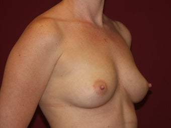 Breast Implants 683150
