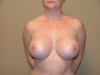 Breast Implants after 683150