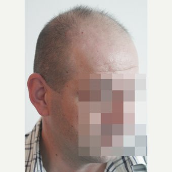 44 years old man treated with FUE Hair Transplant before 3069599