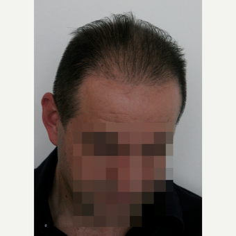 44 years old man treated with FUE Hair Transplant after 3069599
