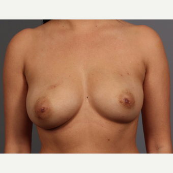 35-44 year old woman treated with Breast Reconstruction before 3657758