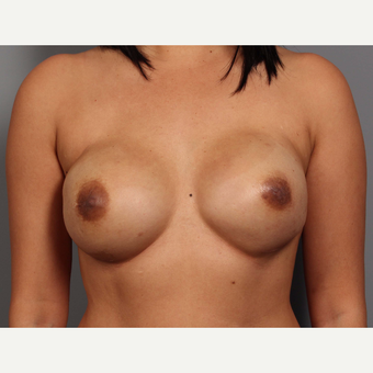 35-44 year old woman treated with Breast Reconstruction after 3657758
