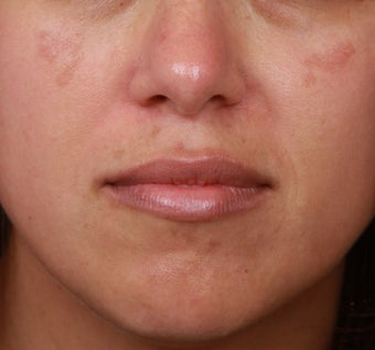 Cosmelan for Melasma before 1358608
