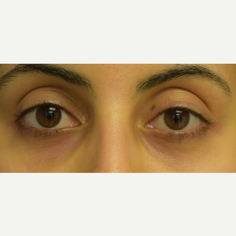 25-34 year old woman treated with Restylane to correct lower eyelid asymmetry after 3642223