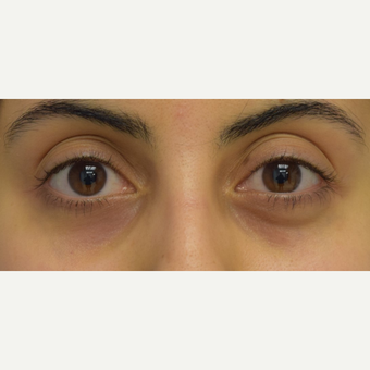 25-34 year old woman treated with Restylane to correct lower eyelid asymmetry before 3642223