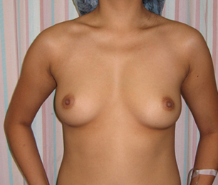 Breast Implant Augmentation in a 25 Year old Asian Patient before 1373780