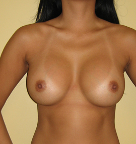 Breast Implant Augmentation in a 25 Year old Asian Patient after 1373780