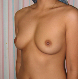 Breast Implant Augmentation in a 25 Year old Asian Patient 1373780
