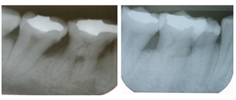 Bone Graft before 997186