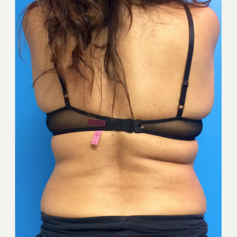 35-44 year old woman treated with CoolSculpting before 3612012
