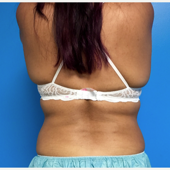 35-44 year old woman treated with CoolSculpting after 3612012