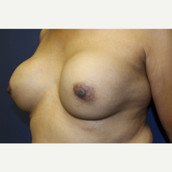 66 year old woman with ruptured 40+ year old silicone breast implants for breast implant removal before 2859459