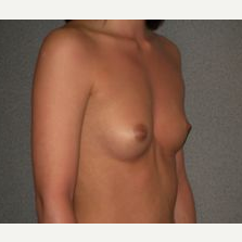 25-34 year old woman treated with Breast Implants before 3108062
