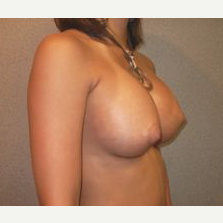 25-34 year old woman treated with Breast Implants after 3108062