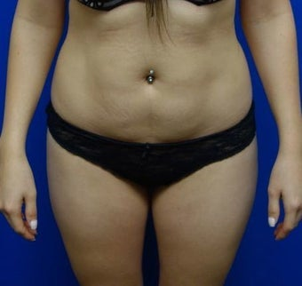 Liposuction with Fat Transfer to the hips before 1566523