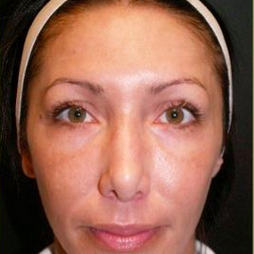 Woman treated with Pearl Laser