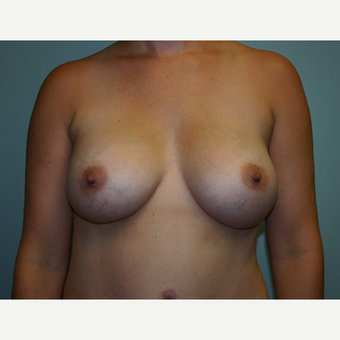 Breast Augmentation after 3562027