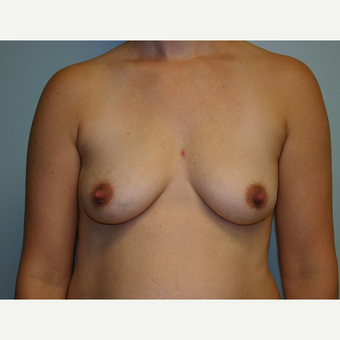 Breast Augmentation before 3562027