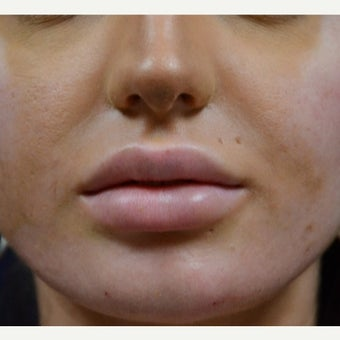 18-24 year old woman treated with Juvederm