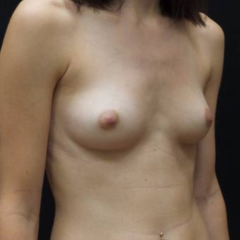 Breast Augmentation before 3012451