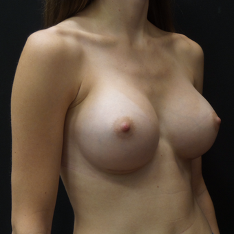 Breast Augmentation after 3012451