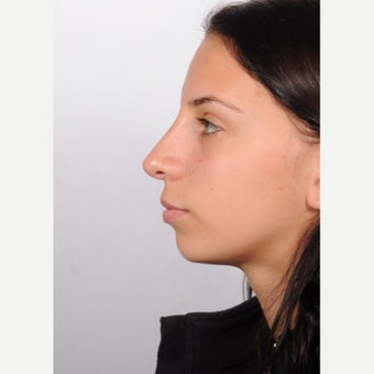 Rhinoplasty after 2595694