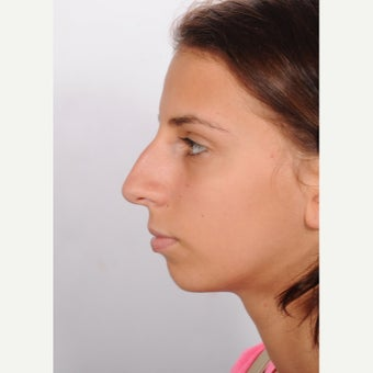 Rhinoplasty before 2595694
