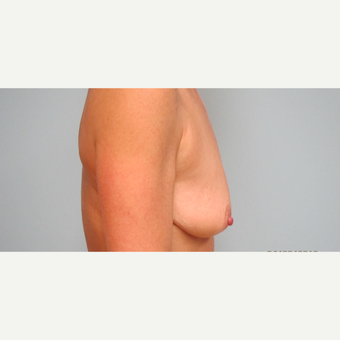 35-44 year old woman treated with Breast Lift with Implants before 3306015