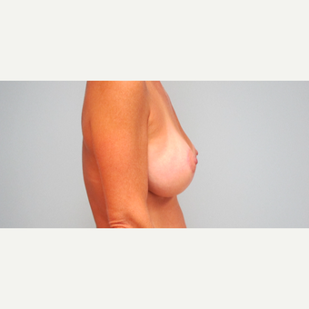 35-44 year old woman treated with Breast Lift with Implants after 3306015