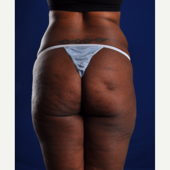 35-44 year old woman treated with Smart Lipo before 3624939